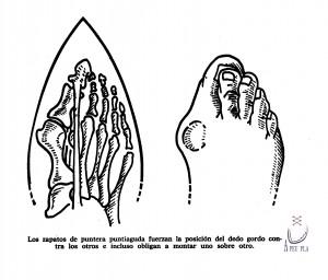 Estrecho = deformación pie