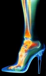 Radiograf. del pié dentro de un zapato de tacón